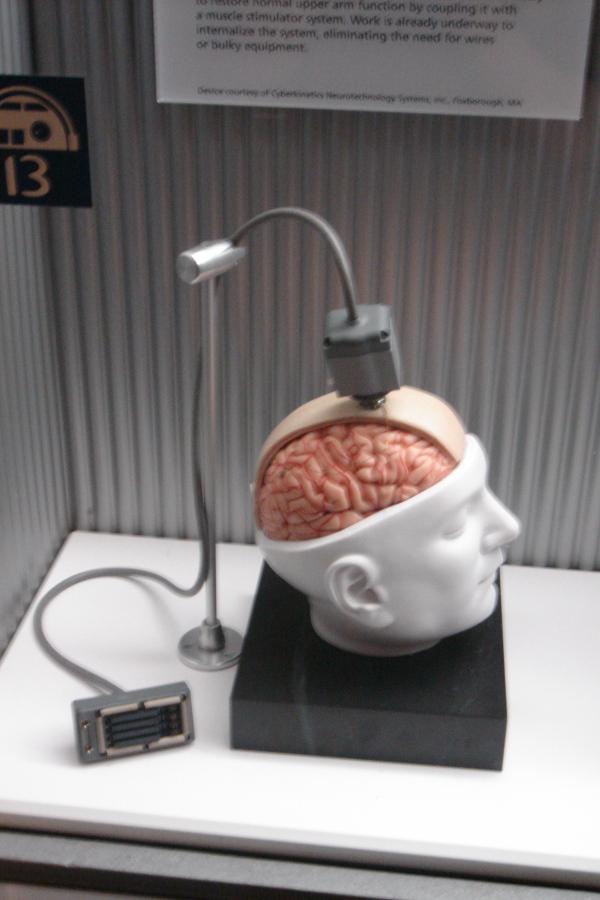 Zdjęcie atrapy interfejsu BrainGate Matthew Nagle w 2006 r.